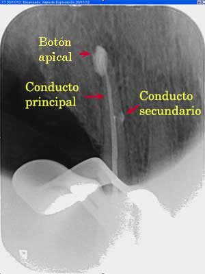 conducto-secundario-endodoncia-madrid