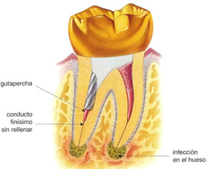 complicaciones endodoncia especialistas madrid